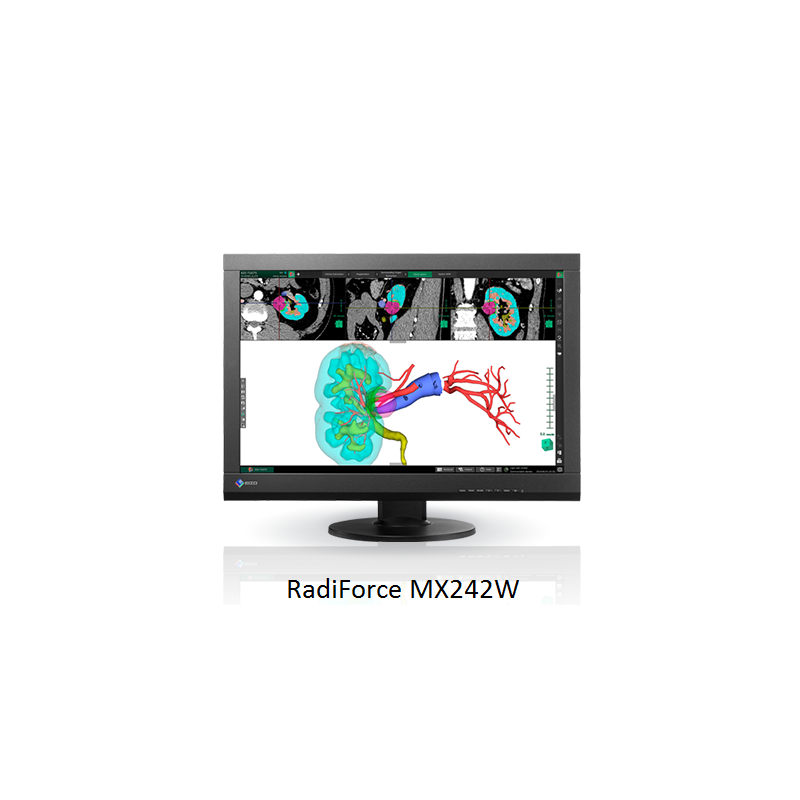 Ecran EIZO RadiForce MX242 - Demonstration JFR